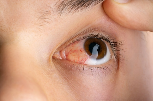 Eyes of a person in a terrible condition