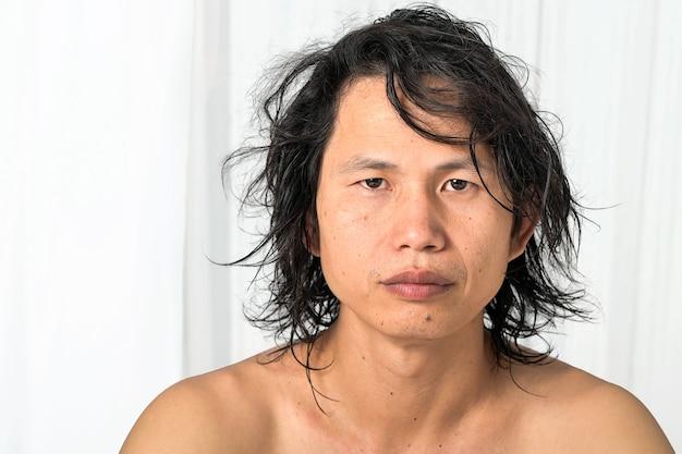 Крупный план лица: азиатские мужчины в возрасте 35-40 лет с проблемной кожей, шрамами от прыщей, морщинами и темными пятнами, отсутствием ухода за кожей. сухой коже не хватает влаги.