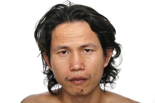顔のクローズアップ:35-40歳のアジア人男性、しわ、クロウズフィート、スキンケアの欠如