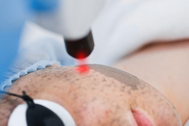 Крупный план процедуры лазерного пилинга кожи лица. аппарат для омоложения кожи лазерным лучом.