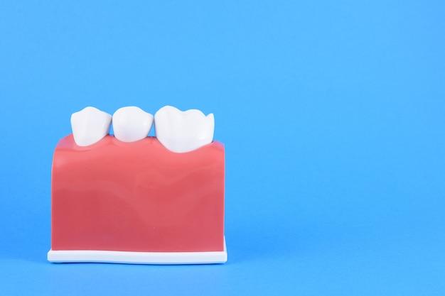 Ложный рот стоматолога в голубом