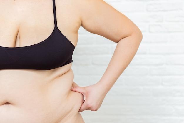 뚱뚱한 건강에 해로운 여자 몸. 배 쪽을 꼬집습니다. 측정 숙녀 절차. 약 꼬집음. 안티 셀룰 라이트 과체중