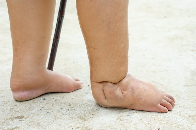 Feet of people with diabetes, dull and swollen. due to the toxicity of diabetes placed