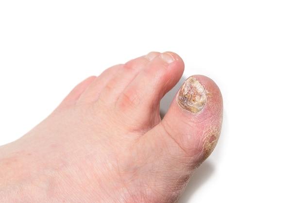Ноги с поврежденными ногтями на белом фоне. отсутствие педикюра. заболевание ногтевой пластины грибком.