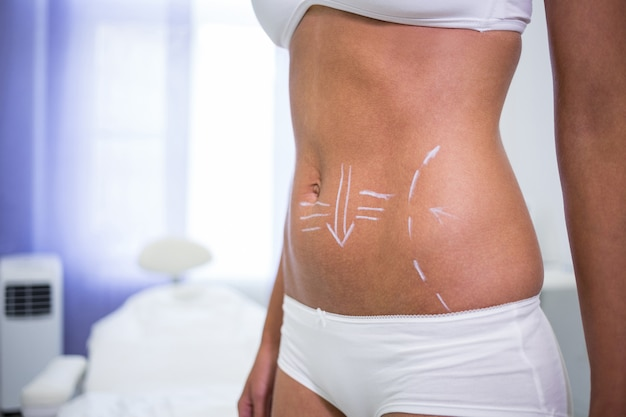 Corpo femminile con le frecce di disegno per l'addome per la liposuzione e la rimozione della cellulite