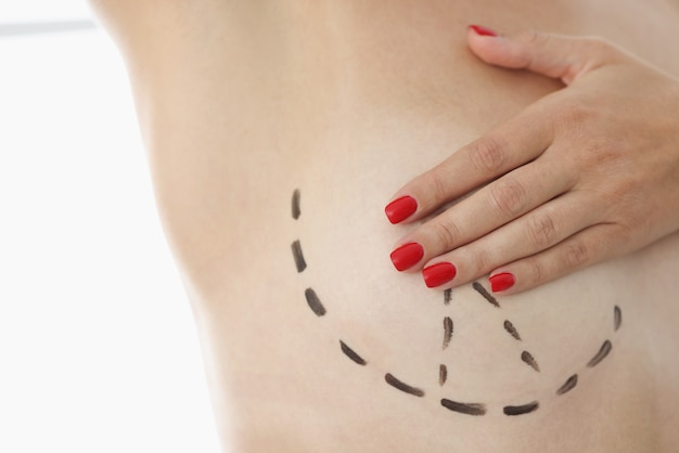 Female breasts with black marker markers for breast lift