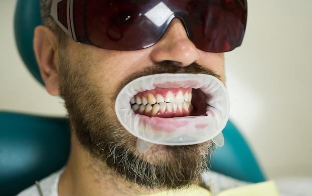 現代の歯科医院で鏡で患者の歯をチェックする女性歯科医。歯を比較する歯科医