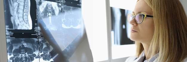 여성 의사는 의료 사무실에서 엑스레이를 검사합니다. 의료 및 서비스 개념