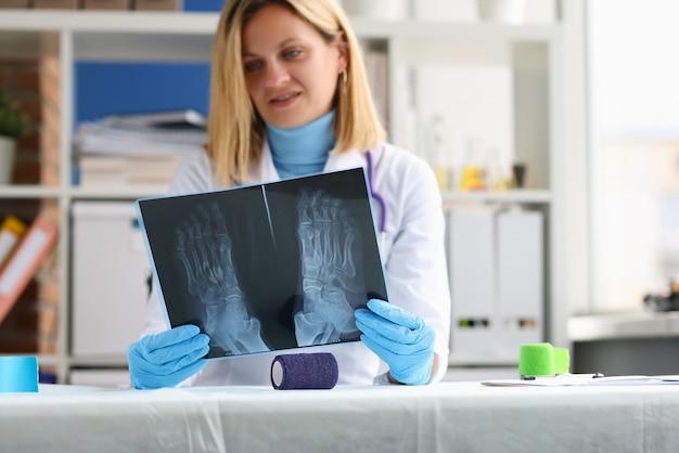 Женщина-врач изучает рентгенограмму симптомов ног пациента и диагностирует остеопороз.