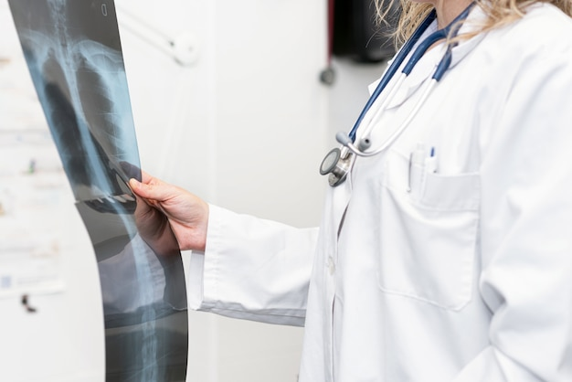 Female doctor holding x-ray of the lungs of a patient. concept of detection of lung diseases.
