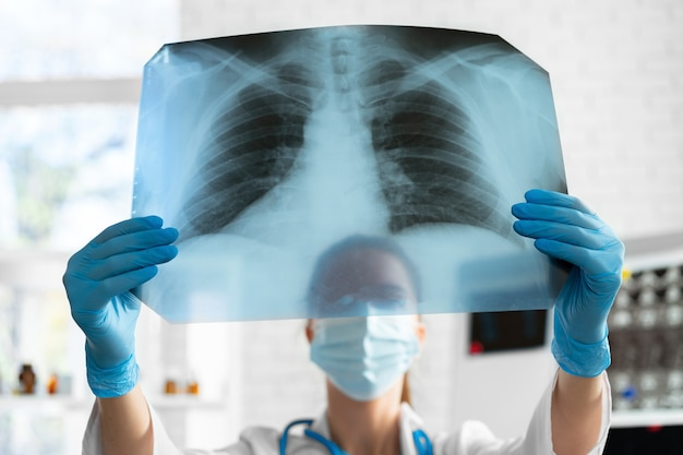 医療用マスクの女性医師が肺のx線スキャンをクローズアップで検査します