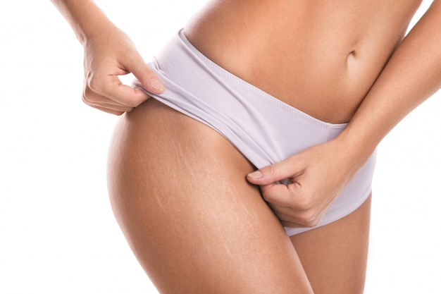 스트레치 마크가있는 여성 엉덩이