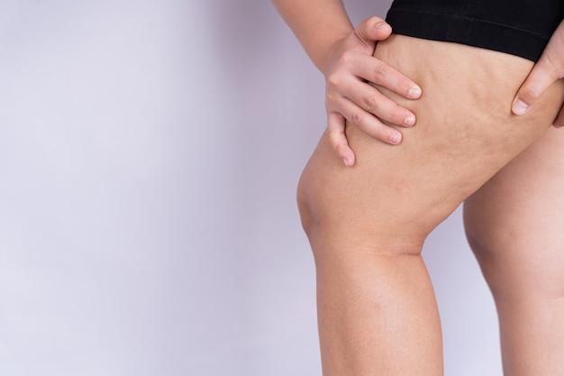 セルライトまたはオレンジの皮の脚の皮膚を保持して押す女性。余分な体重の治療と処分、皮下脂肪組織の沈着