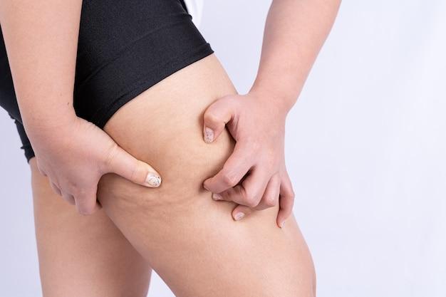 여성은 다리 셀룰 라이트, 오렌지 껍질의 피부를 잡고 밀고 있습니다. 과체중 치료 및 처리, 피하 지방 조직 침착