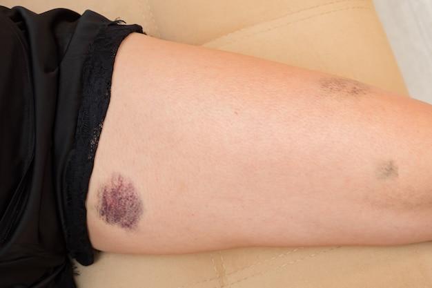 파란색과 분홍색 타박상 근접 촬영으로 여성 다리