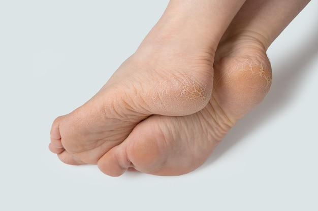 Female legs, feet with dry skin on heels and soles needs care in the spa beauty salon. rough skin on female feet