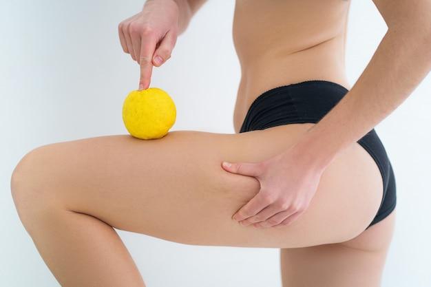 셀룰 라이트가있는 여성 다리. 신체 피부 치료 및 예방. 건강 피부