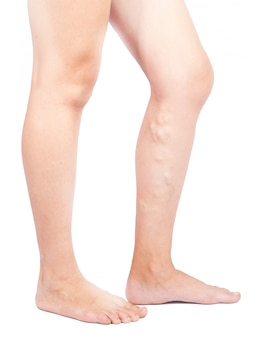 Female legs with varicose veins on white background