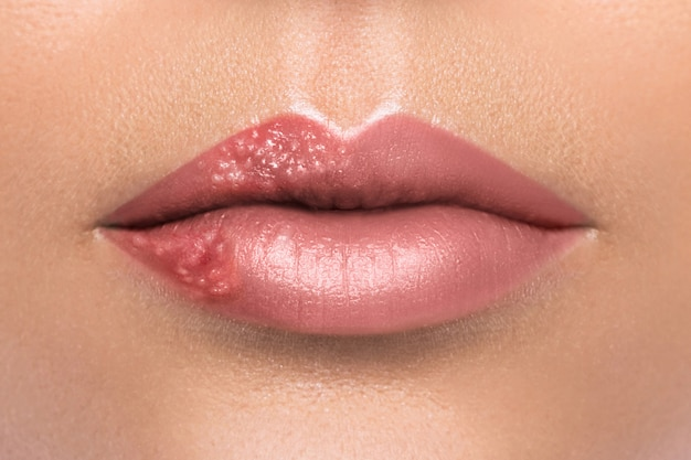 Female lips affected by herpes virus