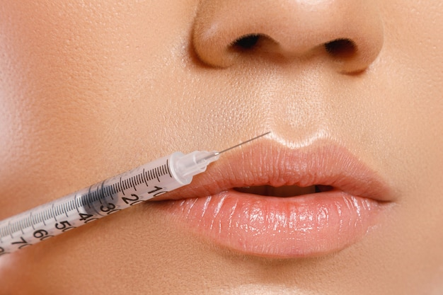 Female lips and syringe with a filler