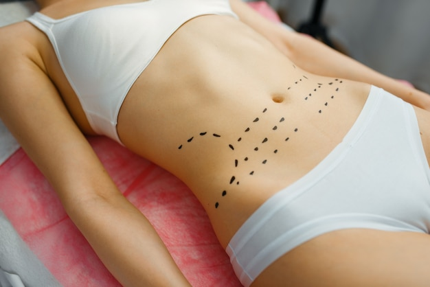 Female patient with markers on her abdomen lying on treatment table in cosmetician's office. rejuvenation procedure in beautician salon. cosmetic surgery against wrinkles, botox