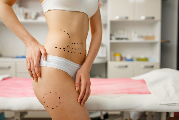 Female patient with markers on her body, cosmetician's office. rejuvenation procedure in beautician salon. cosmetic surgery against wrinkles, preparation to botox