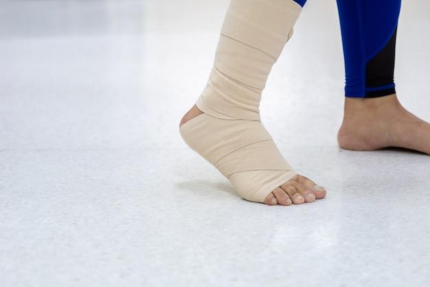 발목 부상, 찢어진 인대 및 부종이있는 여성 환자. 탄력 붕대 사용