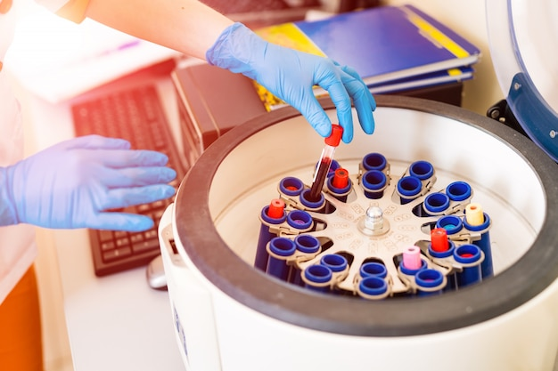 Female's hand in blue glove putting blood samples into a centrifuge in laboratory.