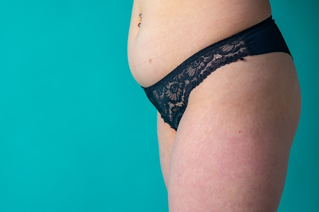 Female stomach and legs covered in stretch marks with cellulite