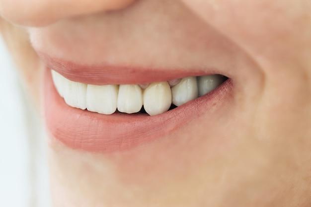 女性の歯マクロジルコニウム。ジルコニウム人工歯のクローズアップ笑顔写真。磁器とジルコニア橋。
