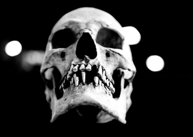 Fiberglass human skull missing teeth on a black background