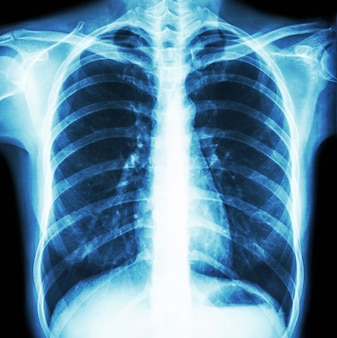 Film chest x-ray of normal human 's chest . front view .