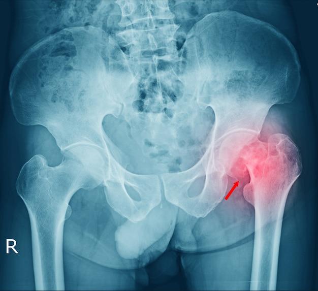 필름 골반 골절 및 왼쪽 고관절 관절염