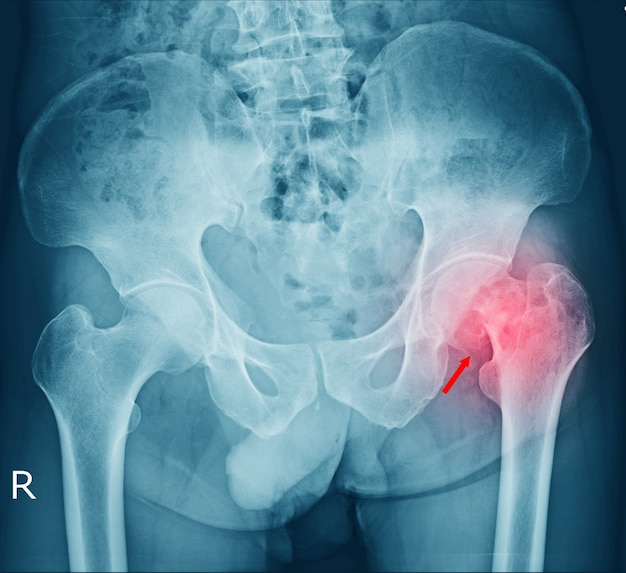 Film pelvis fracture and arthritis at left hip joint