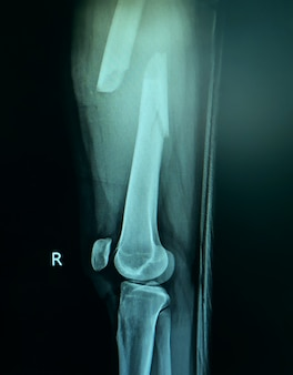 Film x-ray of fracture right thigh.