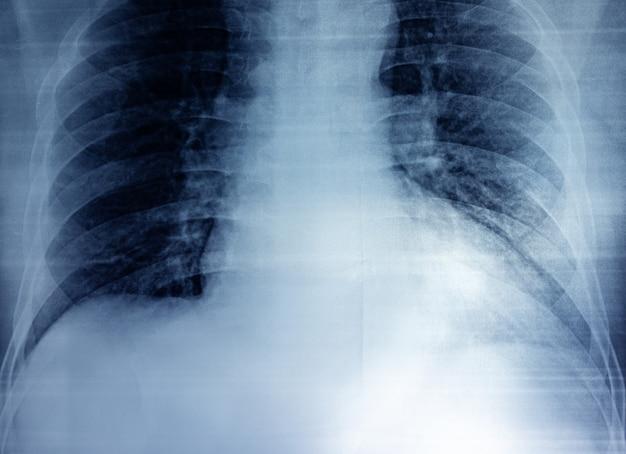 Пленочный рентген груди человека в стиле зернистости пленки.