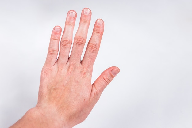 Fingers with badly or chewed bitten nails on gray wall.