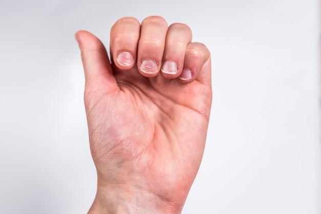 회색 벽에 심하게 또는 씹은 물린 손톱이있는 손가락.