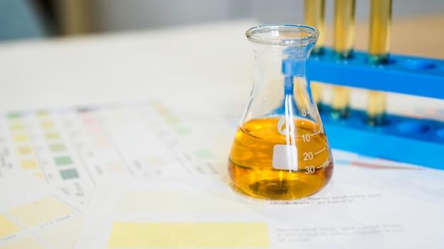 의료 색 구성표에 소변과 함께 스탠드에 플라스크와 테스트 튜브. 실험실 분석, ph 제어의 개념입니다.