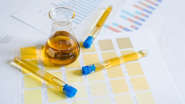 Flask and test tubes with urine on medical color schemes. the concept of laboratory analyzes, ph control.