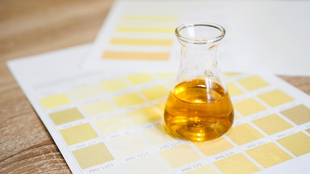 A flask with urine. medical analyzes concept. determination of the diagnosis by the color of urine. chart with colors.