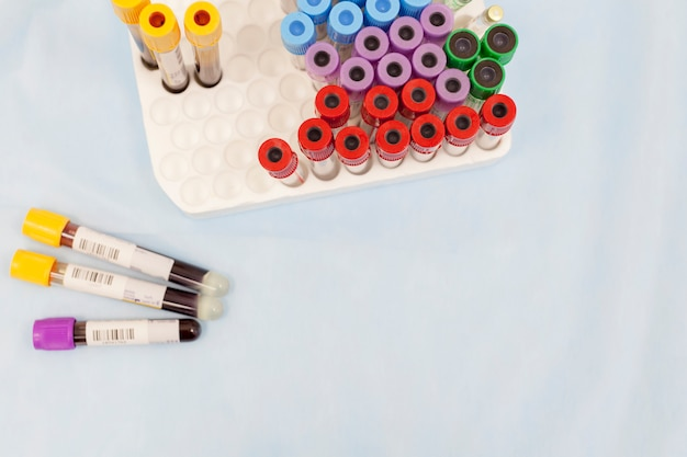 Flat lay composition with test tubes and blood samples