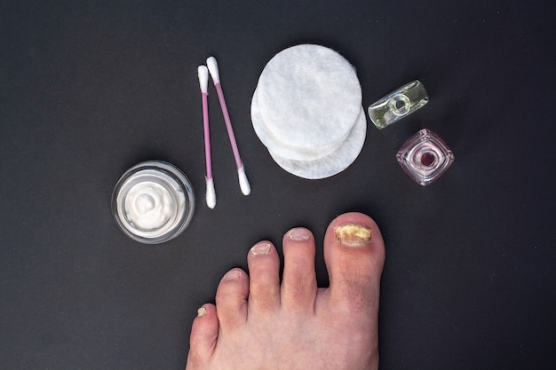 フラットレイ。足の爪の真菌。瓶の中のクリーム、綿棒と綿棒、液体のボトル。暗い背景。