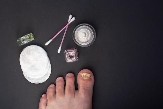 フラットレイ。足の爪の真菌。影響を受けた爪のケアのためのツール。瓶の中のクリーム、綿棒と綿棒、液体のボトル。暗い背景。