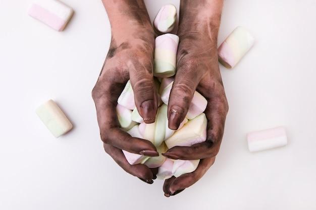 食中毒と手指衛生の悪さ。白い背景にマシュマロを保持している汚れた手。病原菌と不衛生な状態の概念