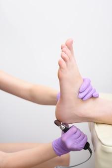 Процесс лечения кожи ног. руки в перчатках с педикюрным аппаратом. крупный план