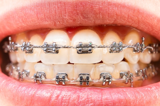 Foreground teeth with braces