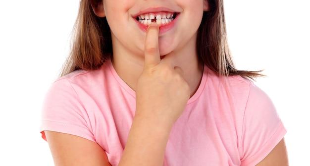 Friendly gril showing her broken teeth