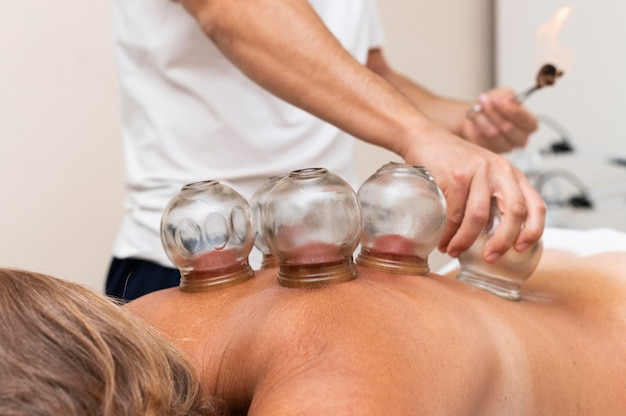 Front view of physiotherapist using cupping method on woman's back