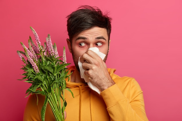 Frustrated man blows nose in tissue, has redness around eyes, symptoms of allergy, has unhealthy look, concentrated at blooming flower, suffers from rhinitis, allergic reaction. people and illness